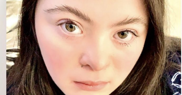 Ellie Goldstein, la prima modella con sindrome di down scelta da Gucci