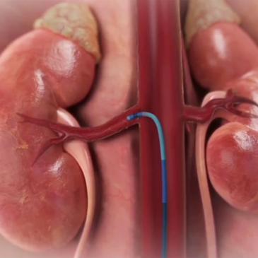 Il Covid-19 non ferma i progressi in Cardiologia al Fatebenefratelli